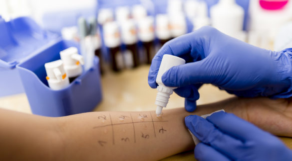 Allergy - skin prick tests
